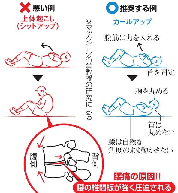 「腹筋運動」は腰痛の原因