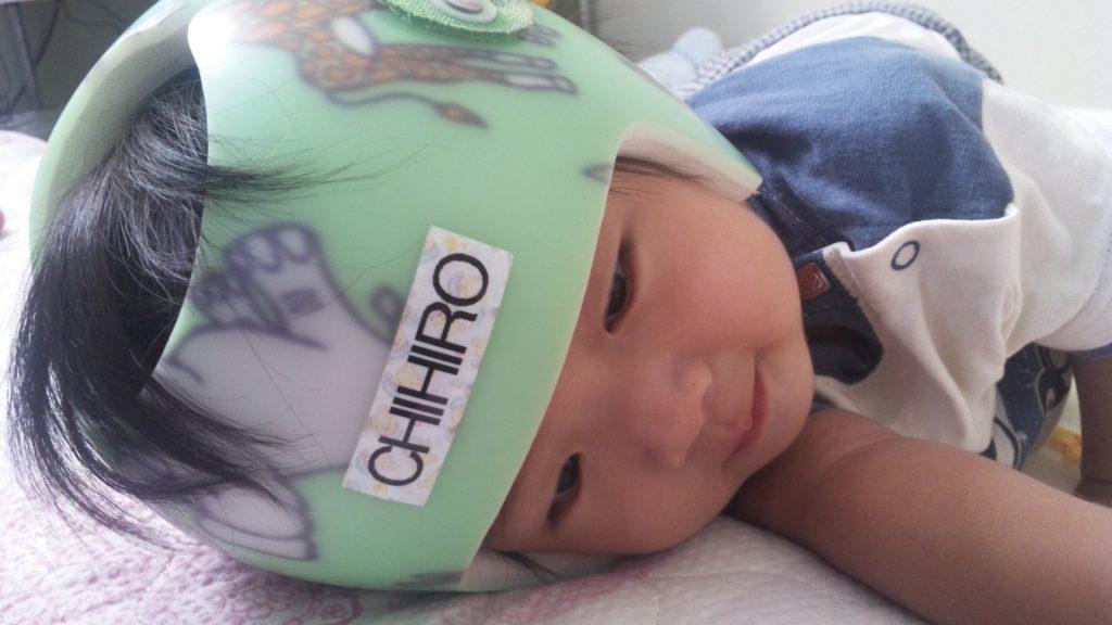 小さな子供へのヘルメット治療をご存知ですか?
