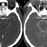 世界一辛いトウガラシ「キャロライナ・リーパー」で脳血管にダメージ