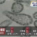 【福岡】乳児など3人が新たにはしかと確認【9人目】