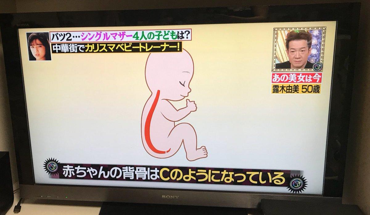 赤ちゃんは背骨の形が大人と違う