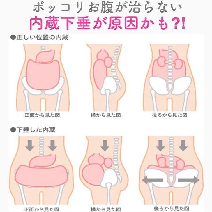 胃下垂解消で、ぽっこりしたお腹を凹ませる体操