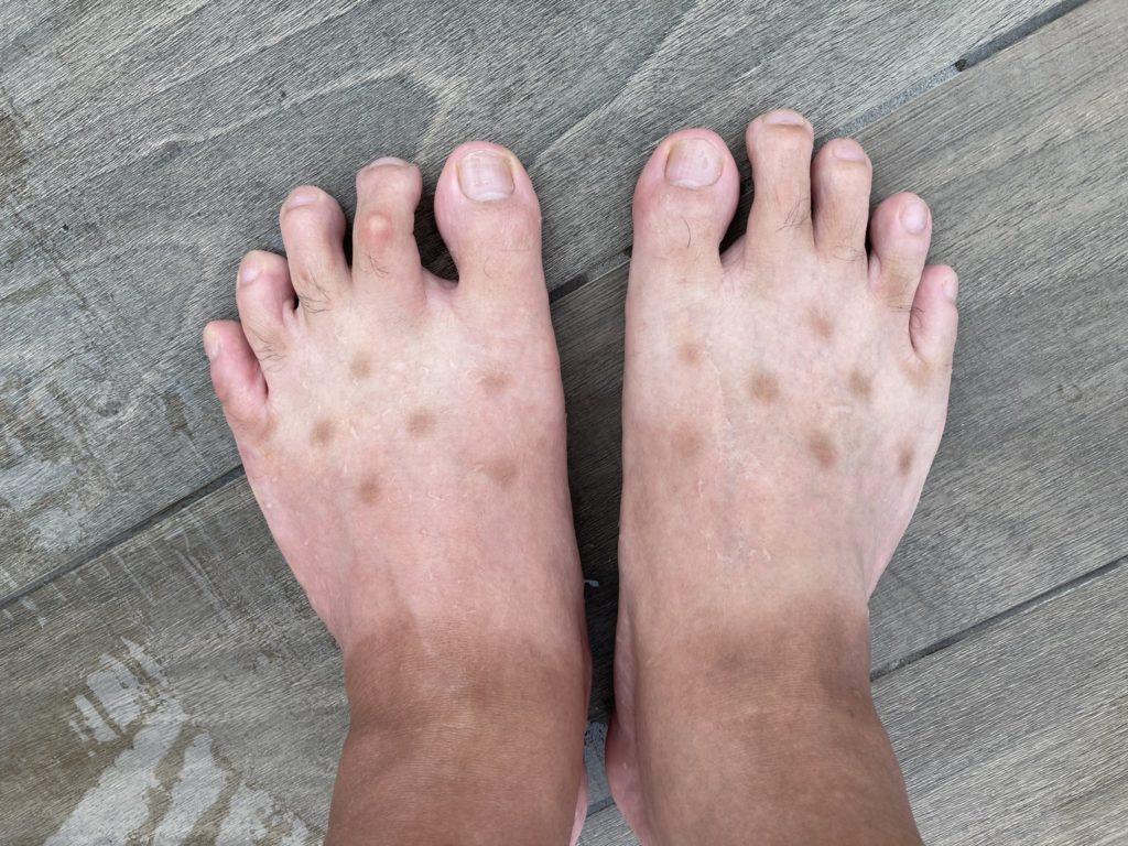 足の表にできた謎の斑点